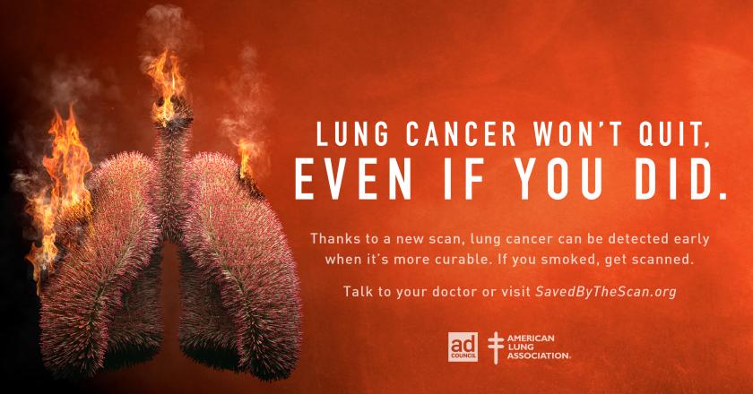 Lung Cancer PSA